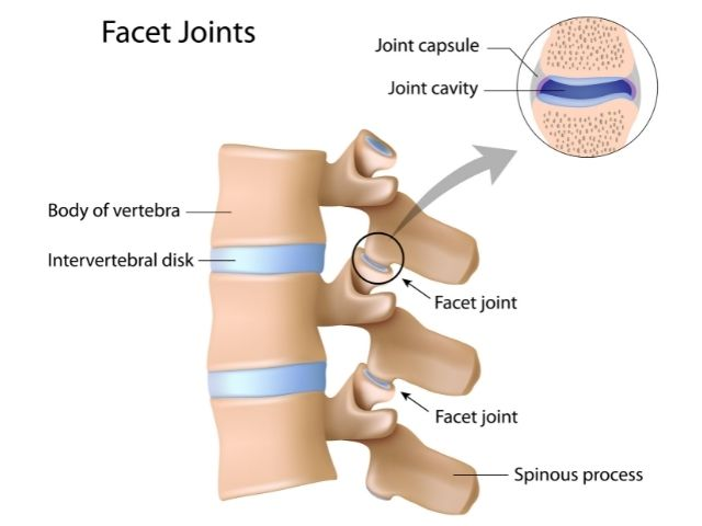Facet joints, which are a primary cause of sciatica.