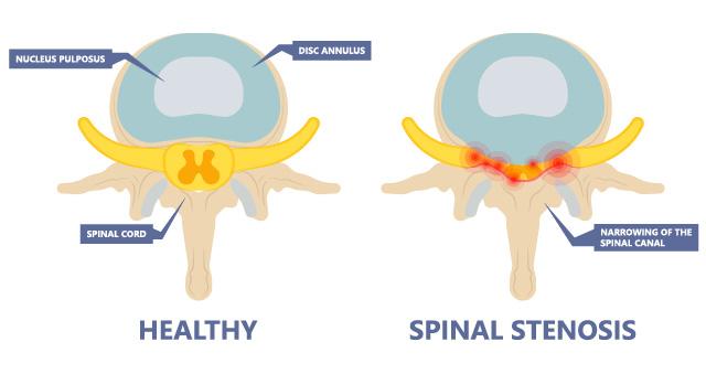 A top-down image of a foraminal stenosis causing sciatica.
