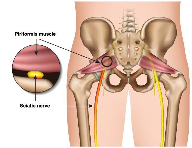 The piriformis muscle and the sciatic nerve.