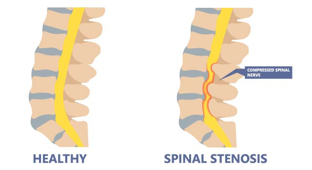 Spinal stenosis and a healthy spine, viewed from the side.