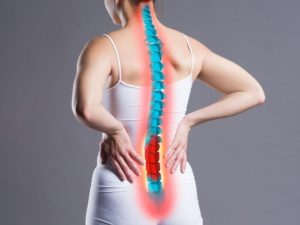 A woman with back pain due to lumbar spondylolisthesis.